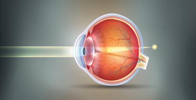 Hyperopia eyeball