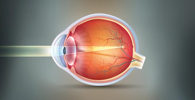 Myopia eyeball